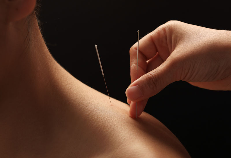 mobile acupuncture manchester